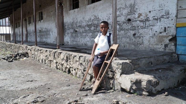 Kuvassa kongolainen poika seisoo kainalosauvojen kanssa.